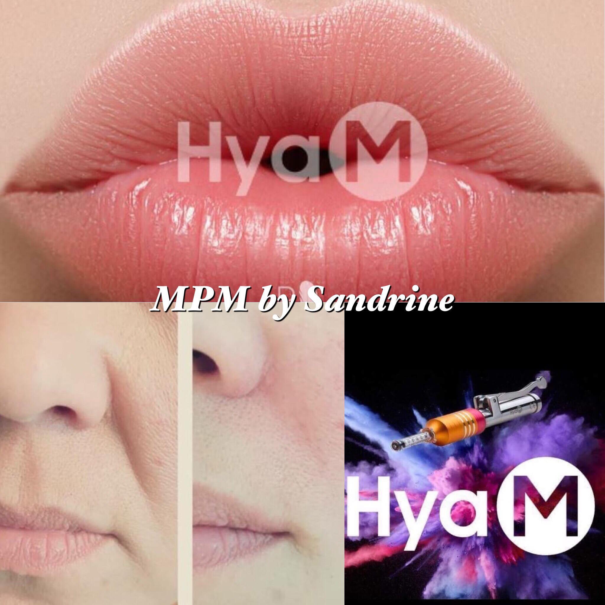 Soin lèvre, acide Hyaluronique Montpellier
