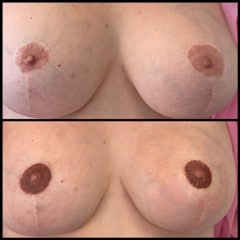 Micropigmentation aréoles mammaire 3D - Maquillage Permanent by Sandrine Montpellier