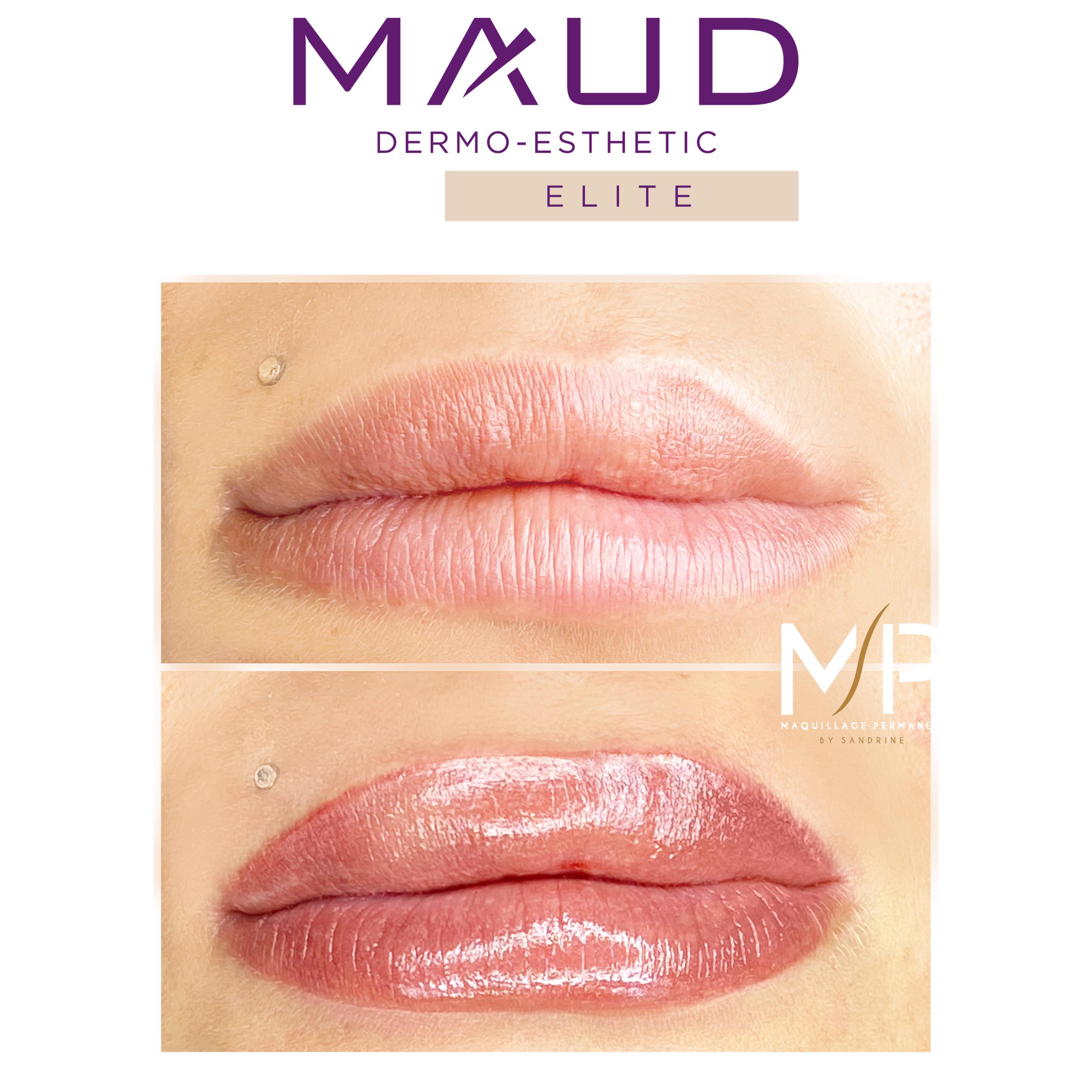 BEAUTY FULL LIPS® by Maud Elite. Maquillage permanent des lèvres Montpellier. Dermochromatique